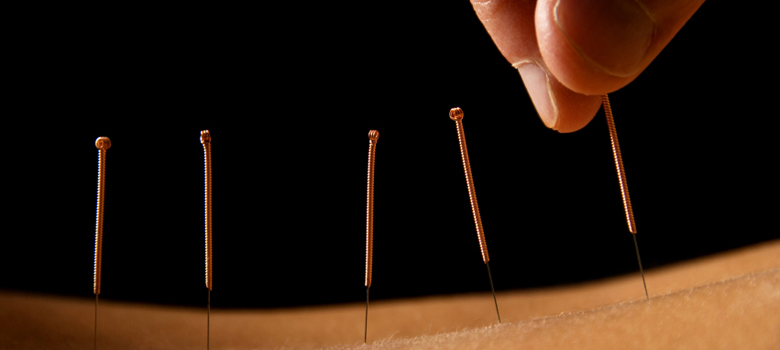 Acupuncture-picture